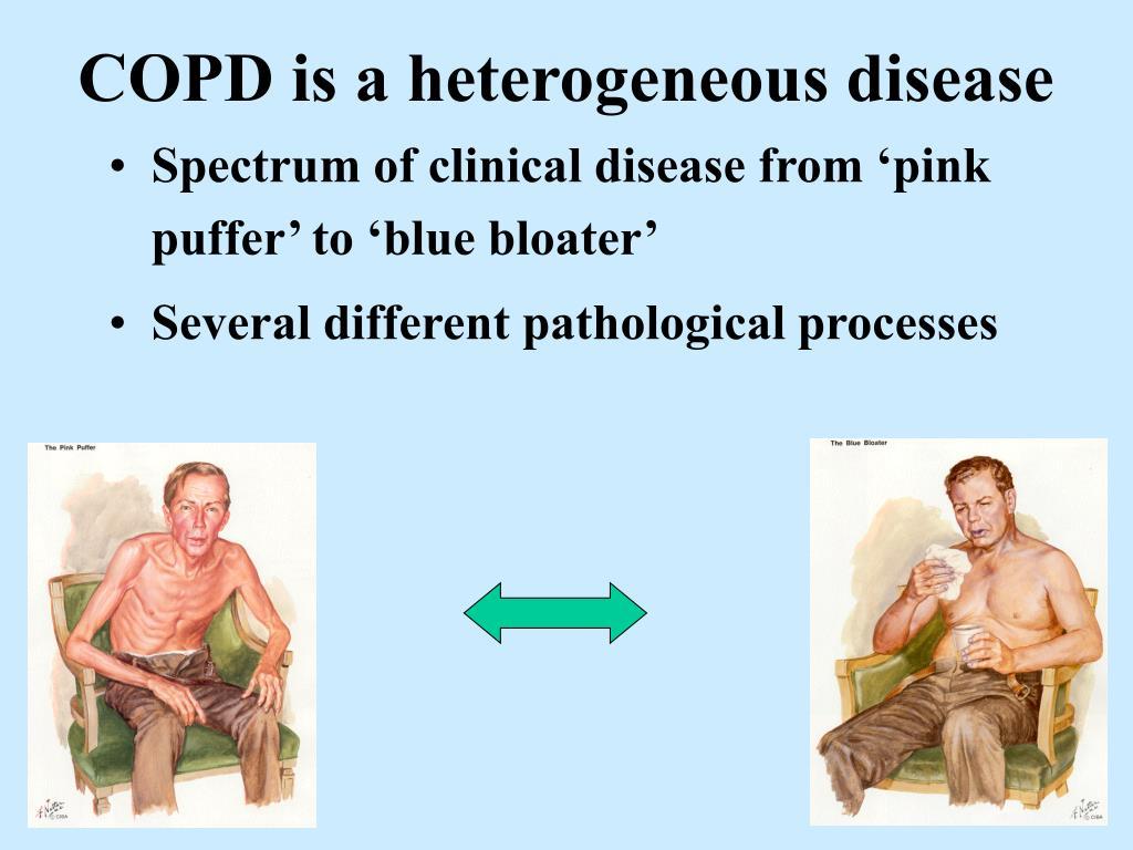 COPD is a heterogeneous disease