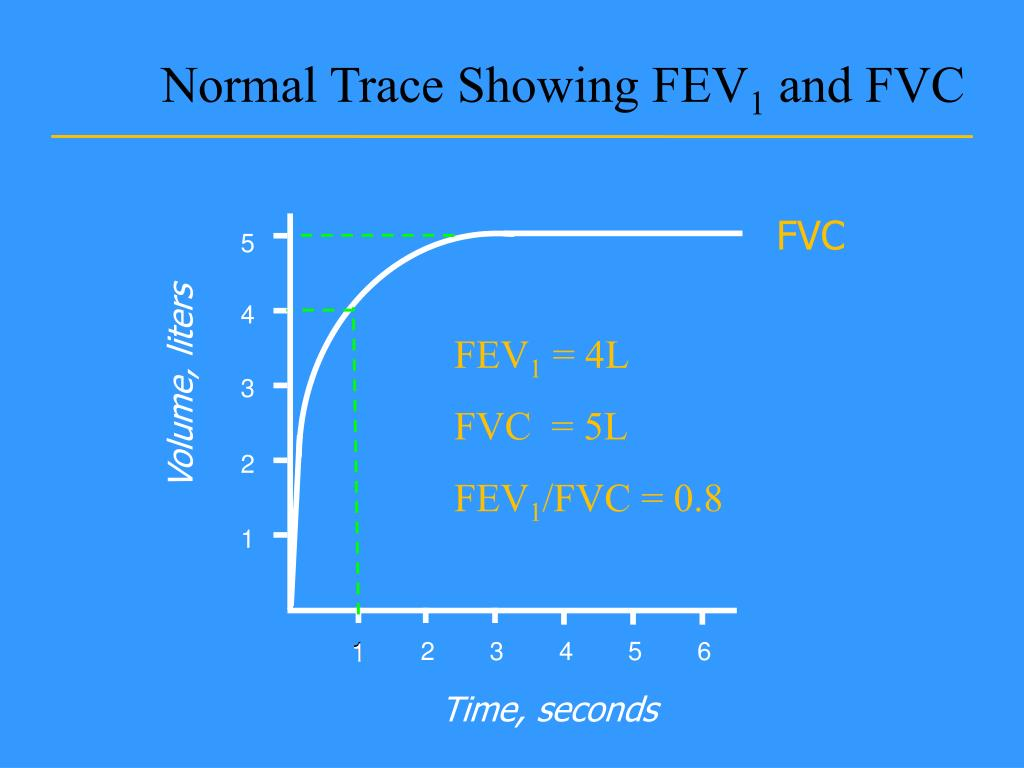Normal Trace Showing FEV