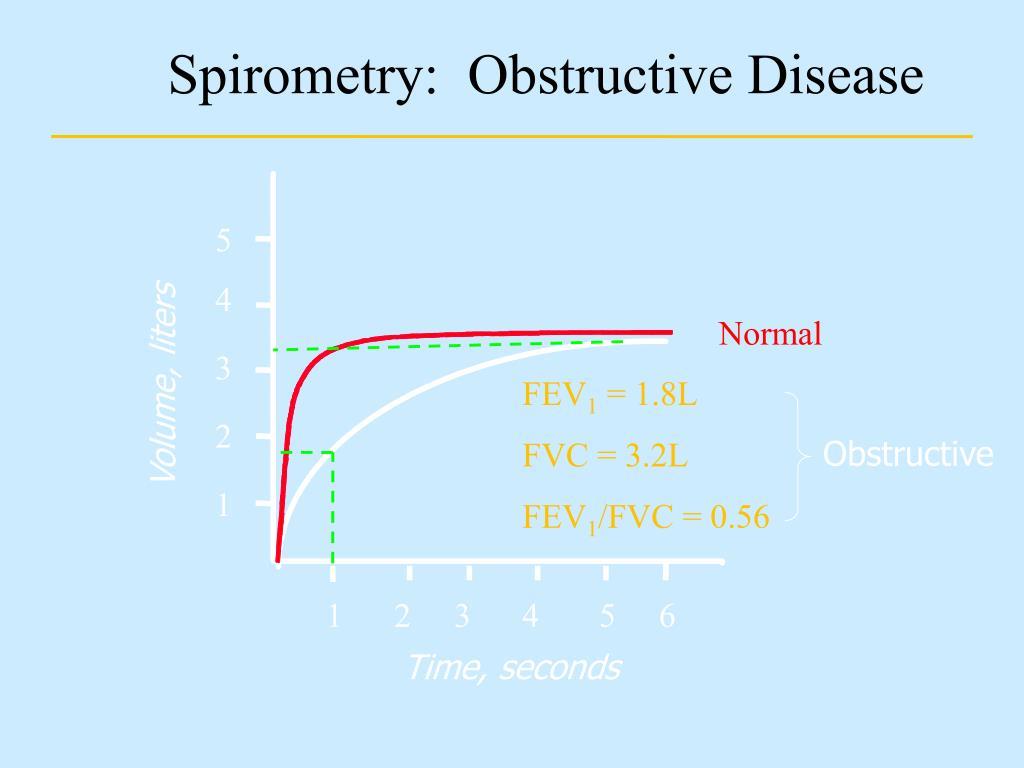 Spirometry:  Obstructive Disease