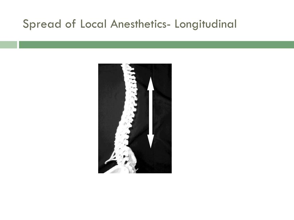 Spread of Local Anesthetics- Longitudinal
