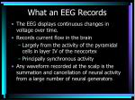 what an eeg records