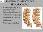 encroachments on spinal canal