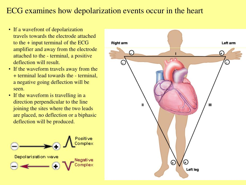 ECG examines how depolarization events occur in the heart