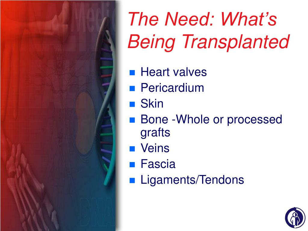The Need: What's Being Transplanted