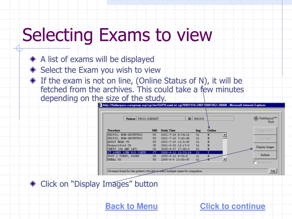 Selecting Exams to view