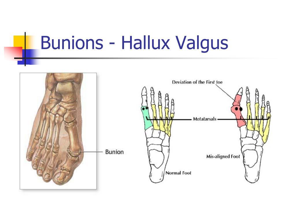 Bunions - Hallux Valgus