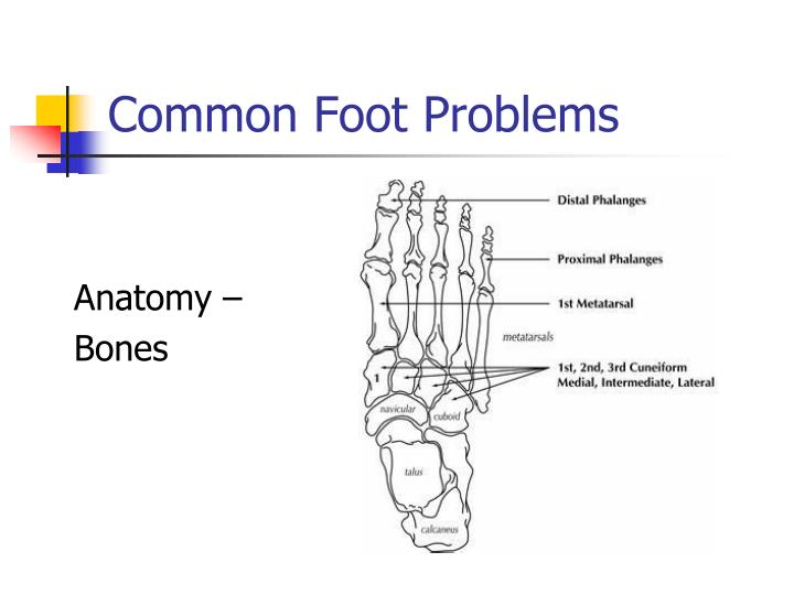 Common foot problems2