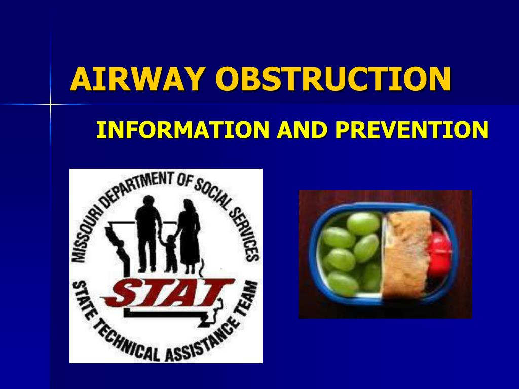 airway obstruction l.