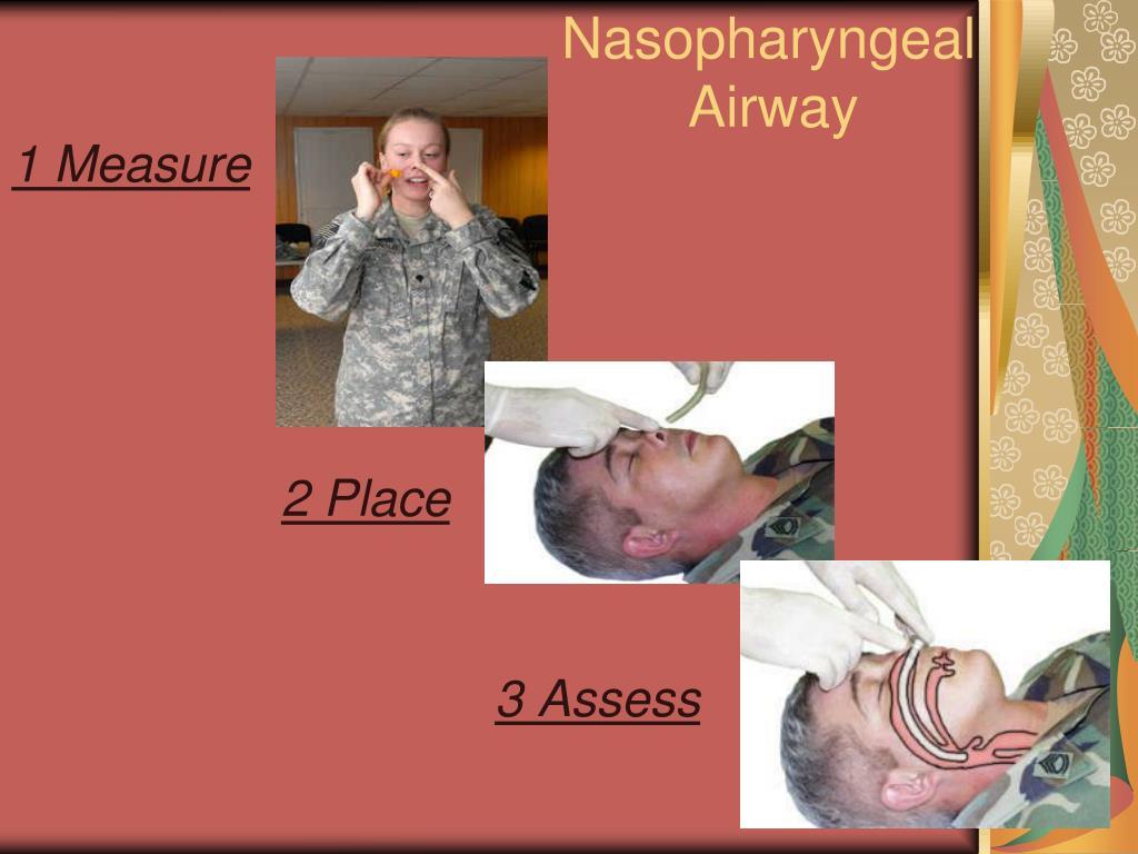 Nasopharyngeal