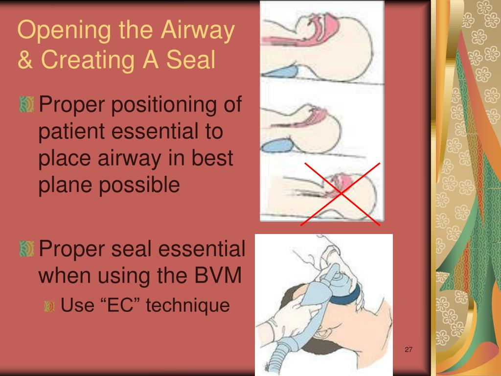 Opening the Airway                        & Creating A Seal