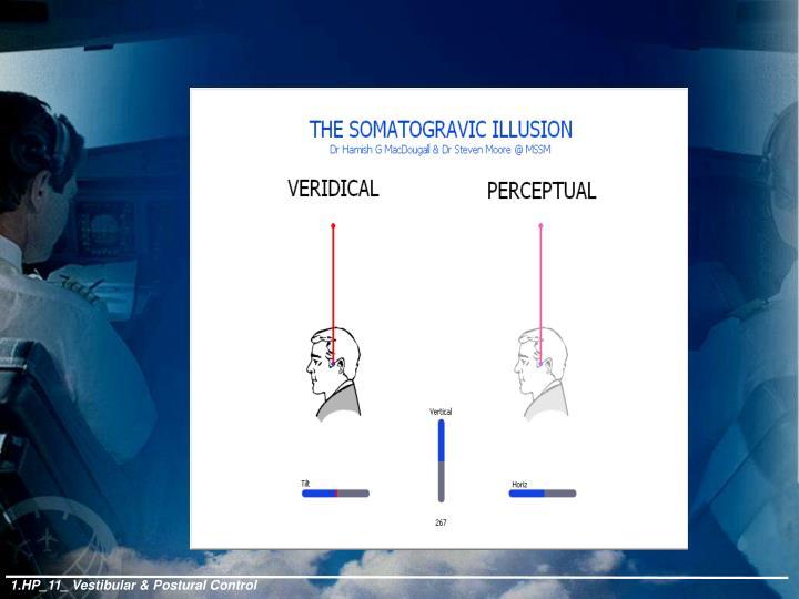 1.HP_11_ Vestibular & Postural Control