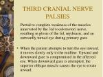 third cranial nerve palsies