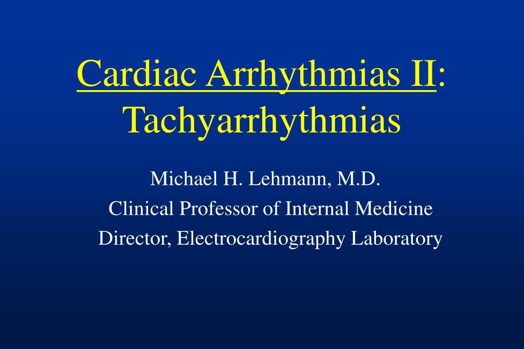 cardiac arrhythmias ii tachyarrhythmias l.