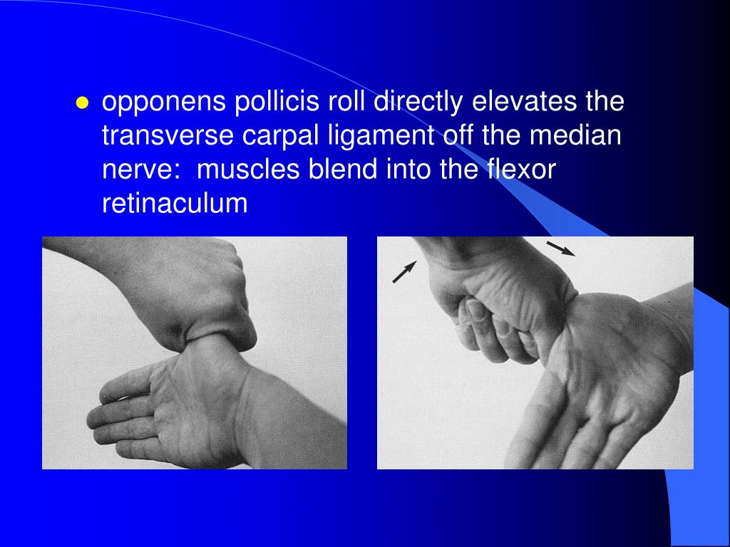 opponens pollicis roll directly elevates the transverse carpal ligament off the median nerve:  muscles blend into the flexor retinaculum