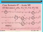 case scenario 7 acute mi st elevation i avl v2 v3 v4 v5 v6