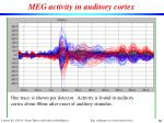 meg activity in auditory cortex