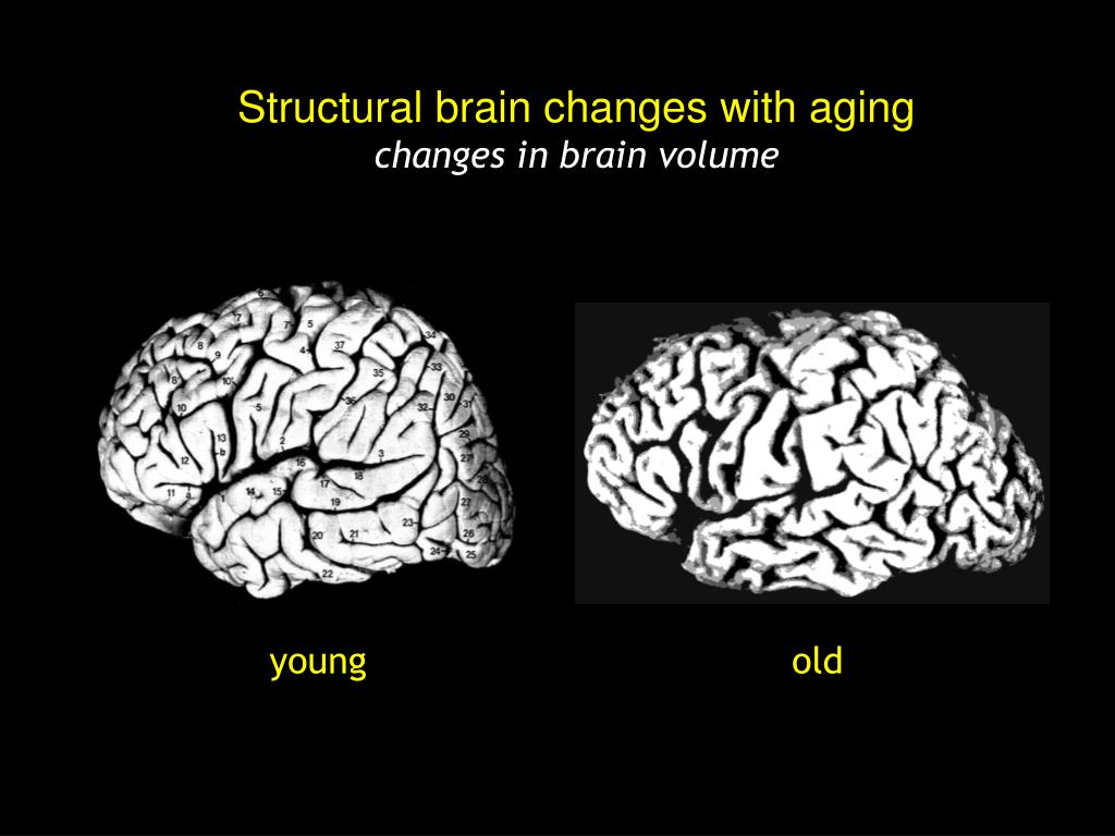 Structural brain changes with aging