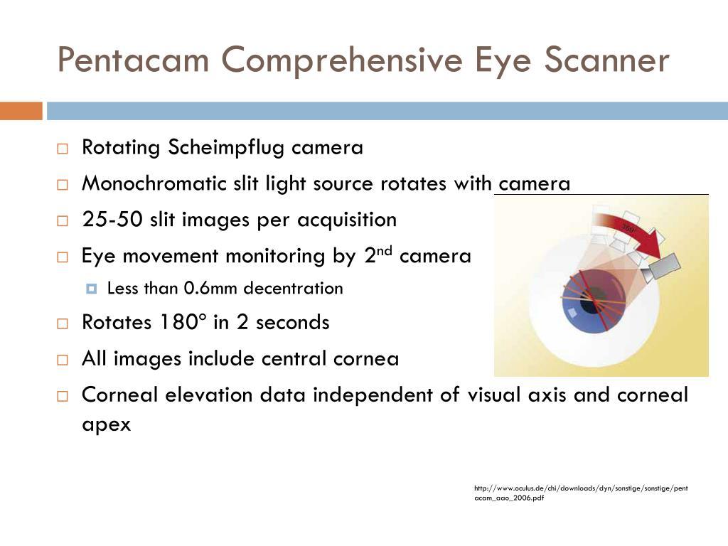 Pentacam Comprehensive Eye Scanner