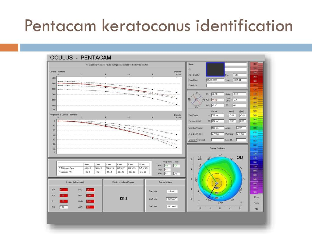Pentacam keratoconus identification