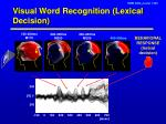 visual word recognition lexical decision
