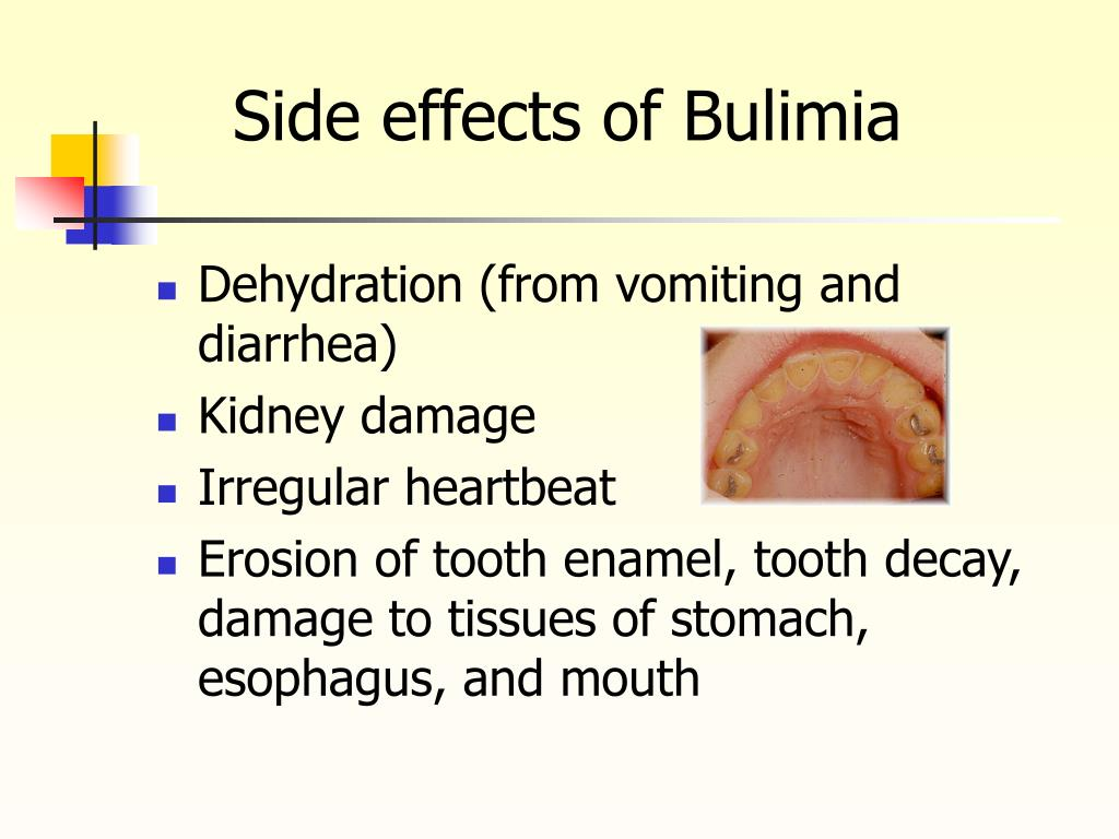 Side effects of Bulimia