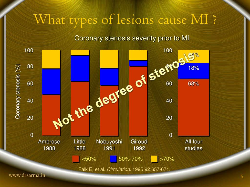 What types of lesions cause MI ?