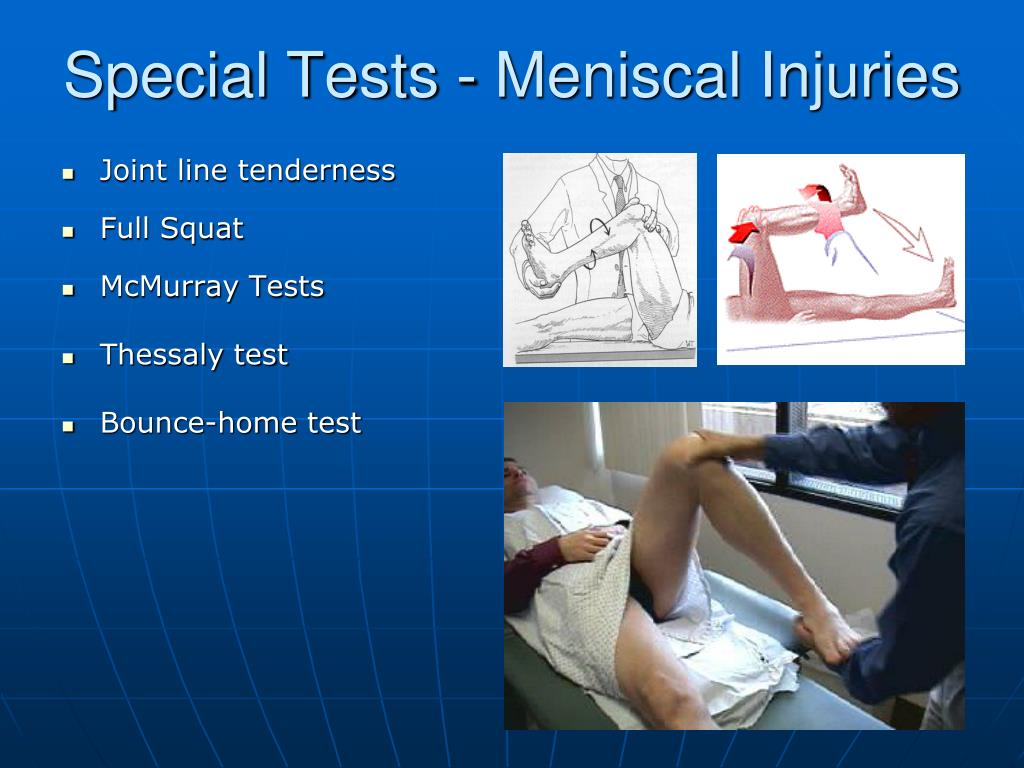 Special Tests - Meniscal Injuries