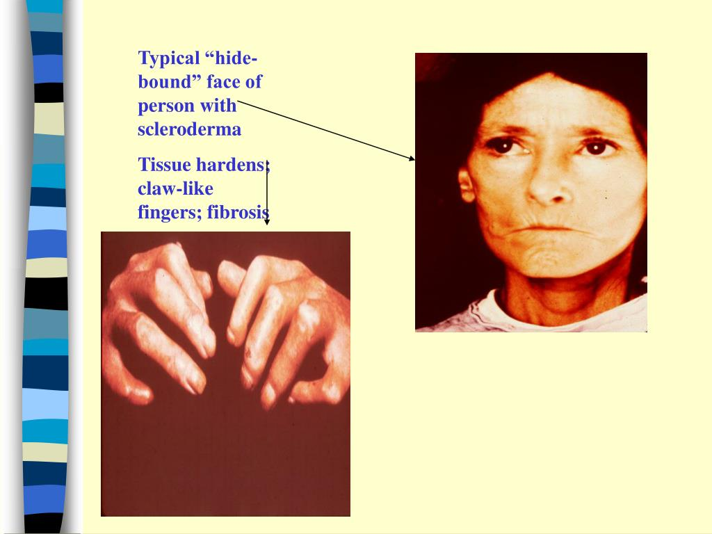 """Typical """"hide-bound"""" face of person with scleroderma"""