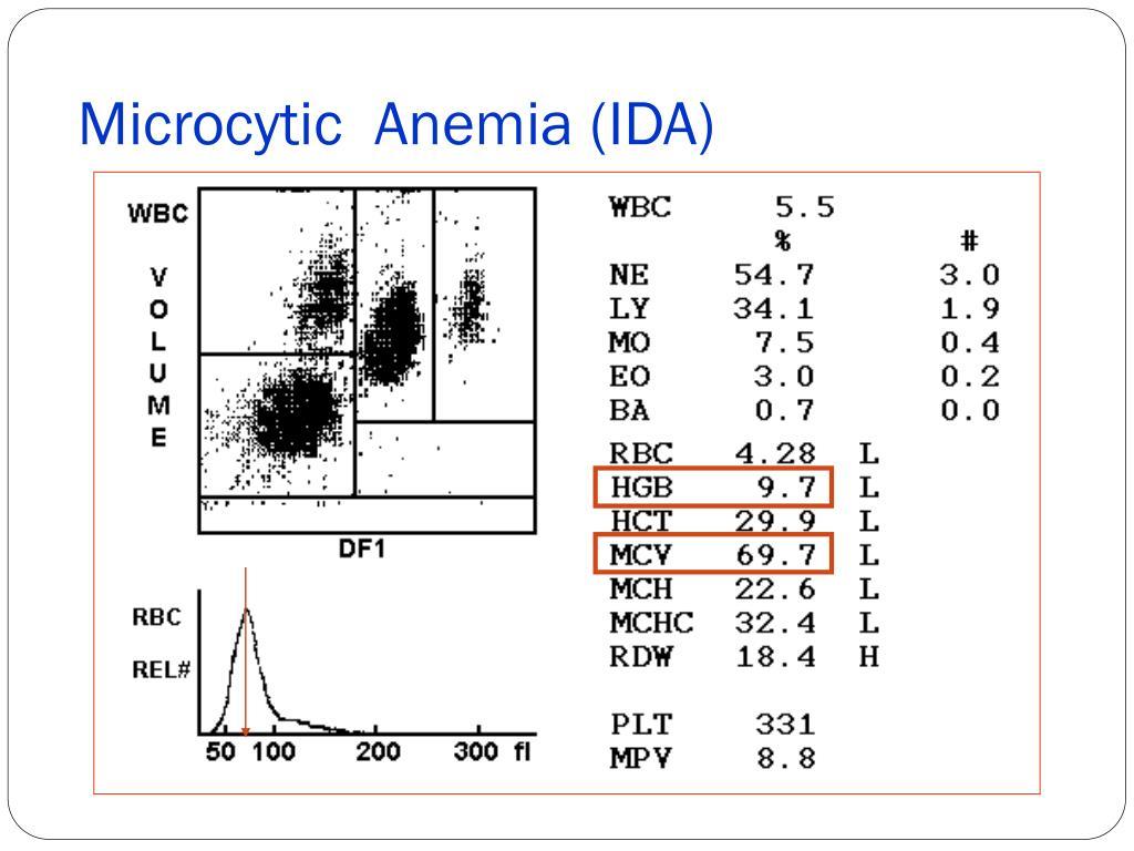 Microcytic  Anemia (IDA)