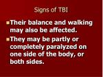 signs of tbi16