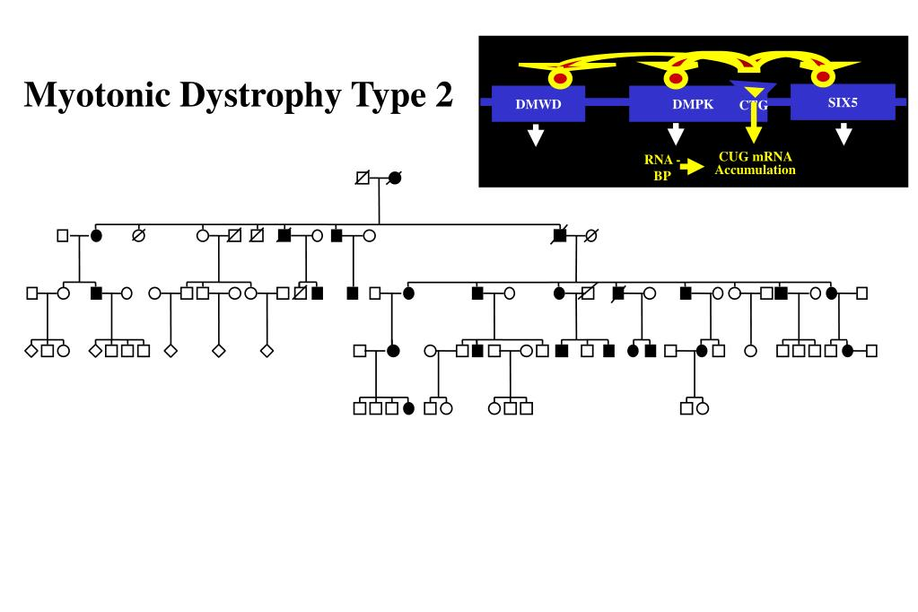 myotonic dystrophy research paper Research paper we have studied pupillary responses to parasympathetic and sympathomimetic agents, pupillary cycle time and the electrophysiology of the blink reflex in 18 patients with myotonic dystrophy the response of the iris to dilute pilocarpine and phenylephrine did not indicate pharmacologic supersensitivity pupillary cycle time was prolonged in nine of the 18 patients.