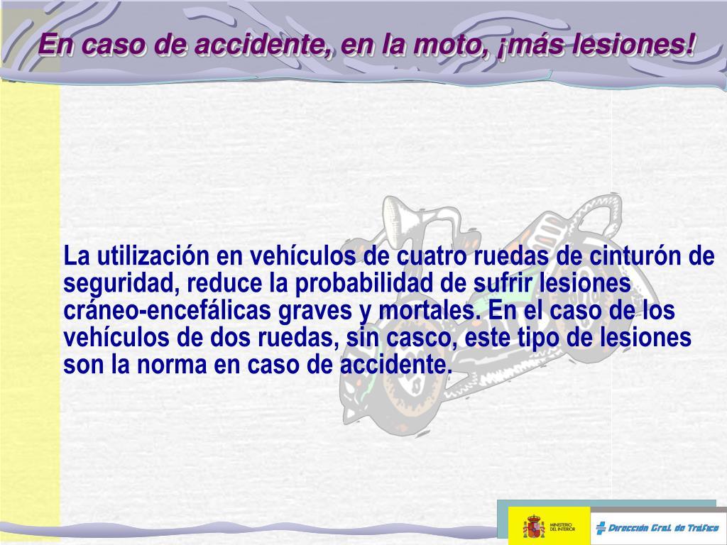 En caso de accidente, en la moto, ¡más lesiones!