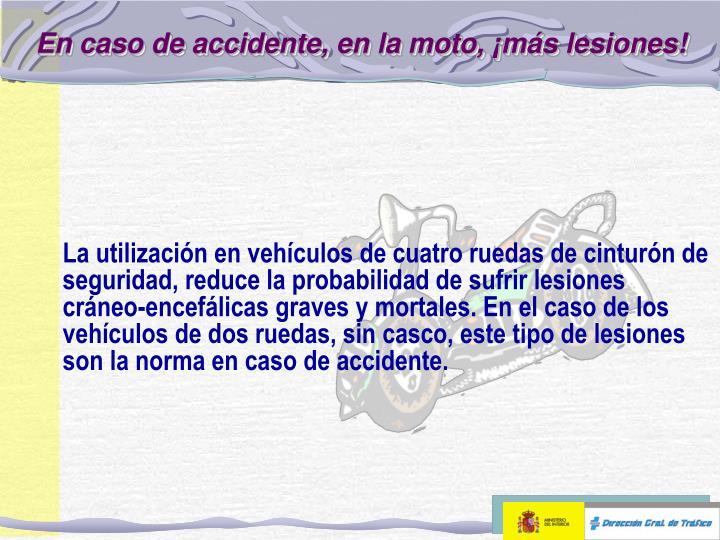 En caso de accidente en la moto m s lesiones