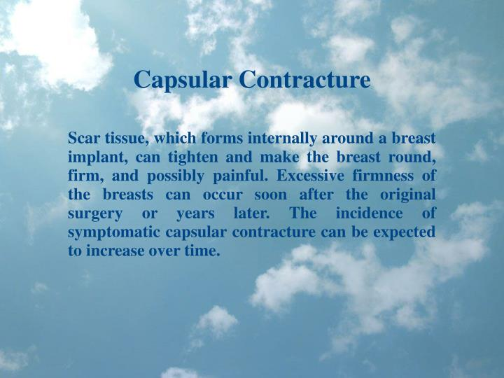 Capsular Contracture