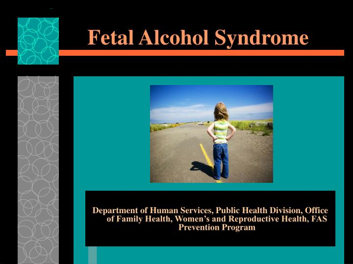 fetal alcohol syndrome n.