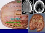 8 layers of protection of the brain and three related disorders