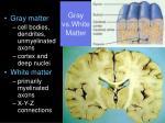 gray vs white matter