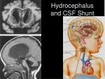 hydrocephalus and csf shunt