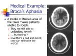 medical example broca s aphasia