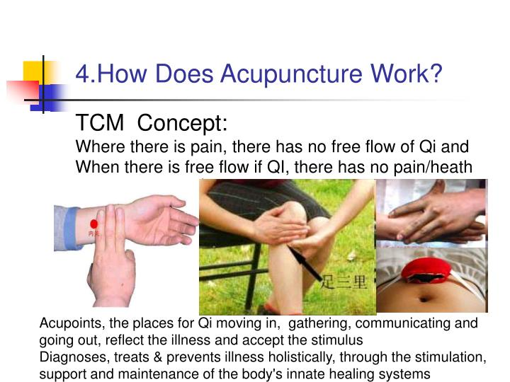 4.How Does Acupuncture Work?