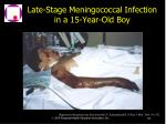 late stage meningococcal infection in a 15 year old boy