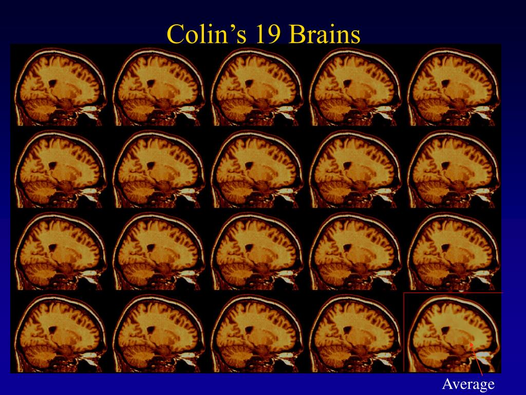 Colin's 19 Brains