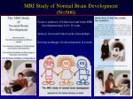 mri study of normal brain development n 500