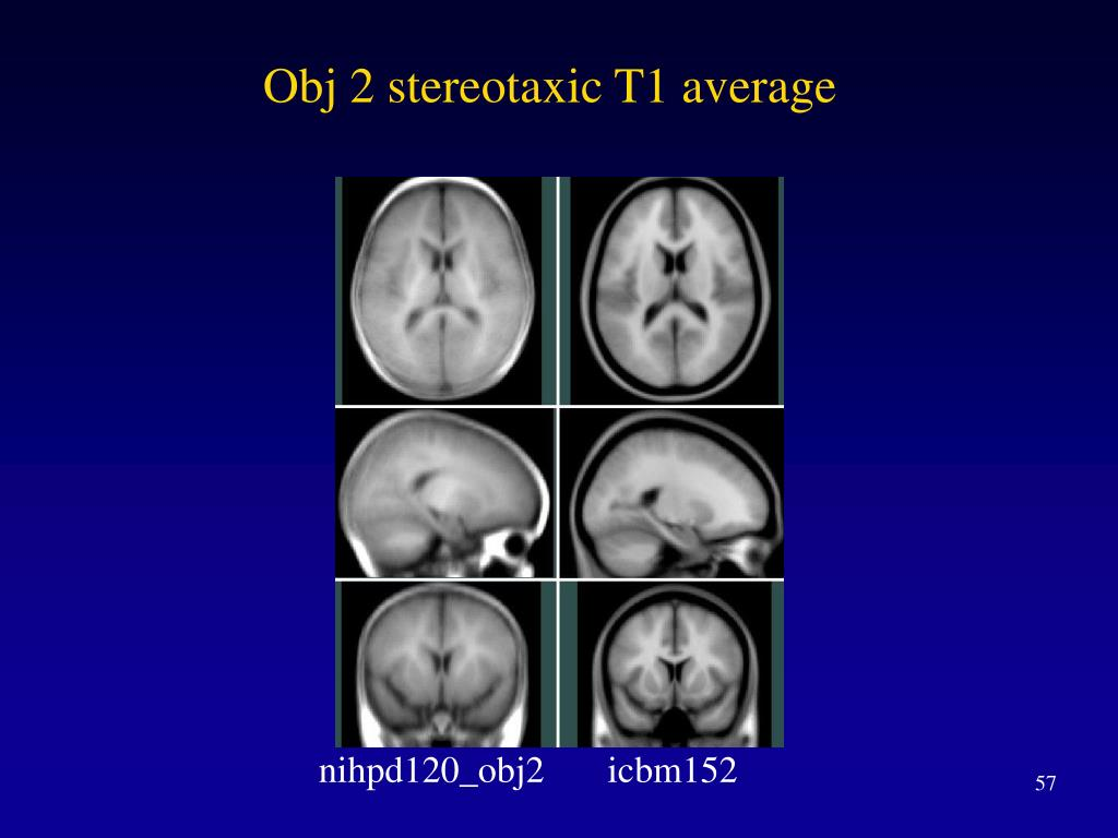 Obj 2 stereotaxic T1 average