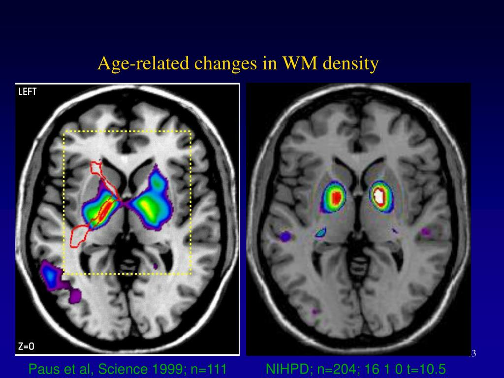Age-related changes in WM density