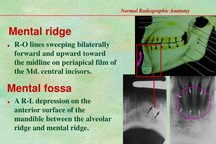 incisive foramen