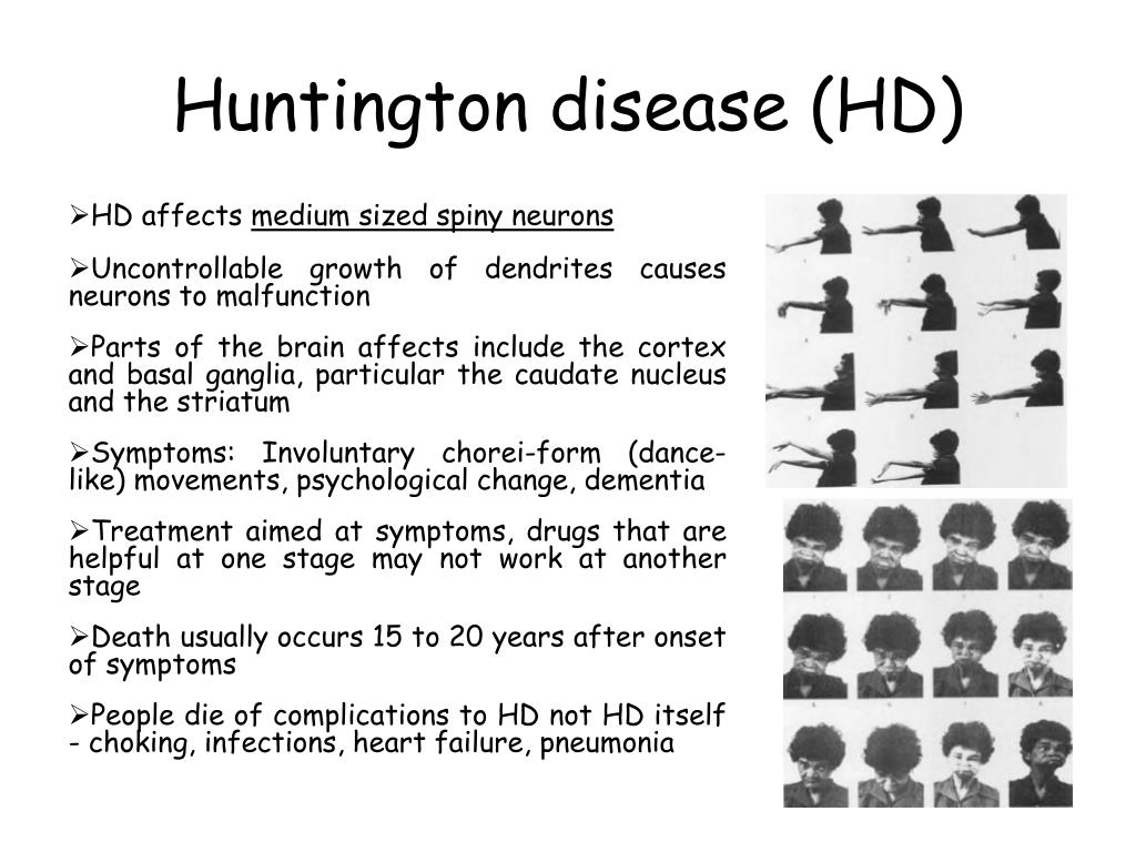huntington disease essay example Get access to huntingtons disease essays only anti essays offers essay examples to help for example-genes like huntington disease which is caused by a.