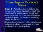 three stages of pulmonary edema35