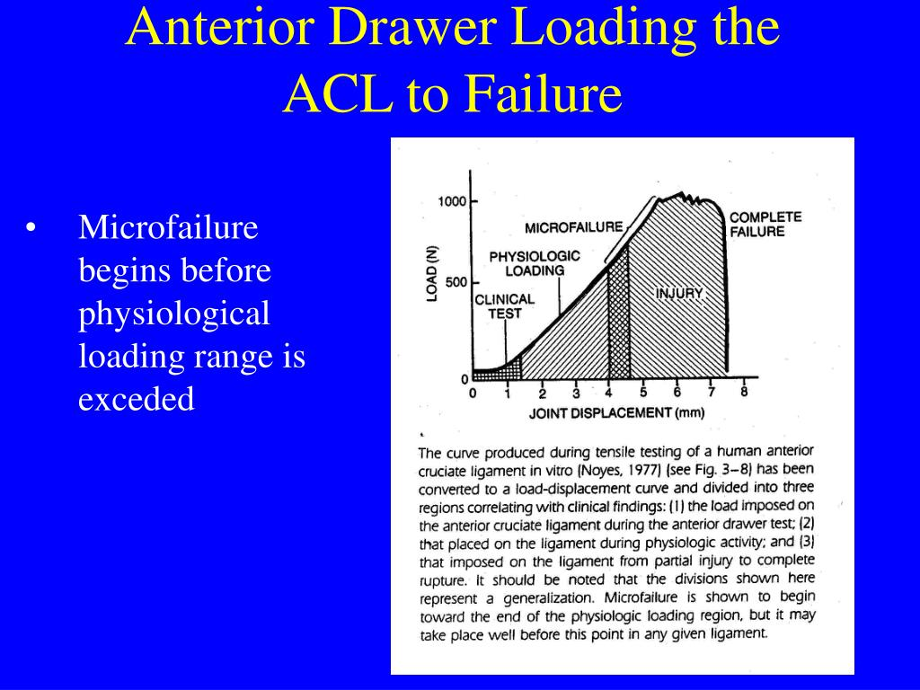 Anterior Drawer Loading the ACL to Failure