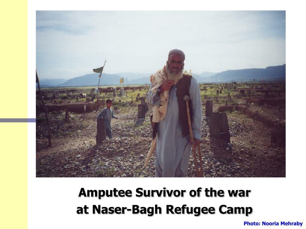 Amputee Survivor of the war